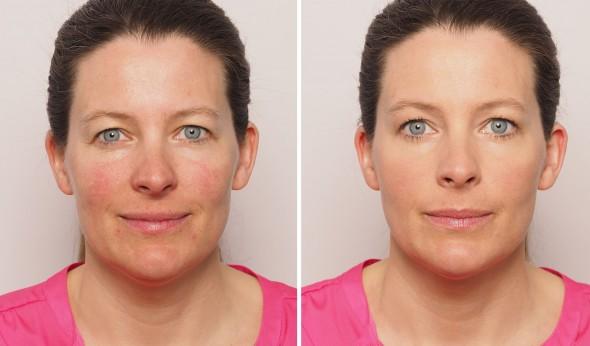 Hautrötungen Vorher Nachher